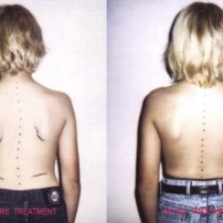 Little boy with scoliosis
